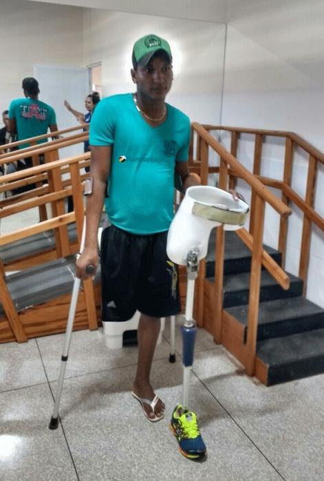 Vítimas amputadas após acidentes de trânsito em Rondônia tentam se adaptar a próteses
