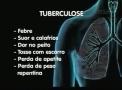 Em dois meses, Porto Velho registra 32 novos casos de turberculose
