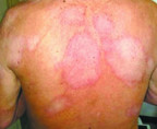 Diagnóstico e tratamento precoce da hanseníase dificulta proliferação de doença em Rondônia