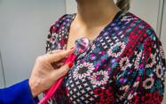 Mais de 700 casos de tuberculose foram registrados em 2018, diz Agevisa