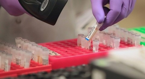 Confirmada em São Paulo a primeira morte por Coronavírus no Brasil