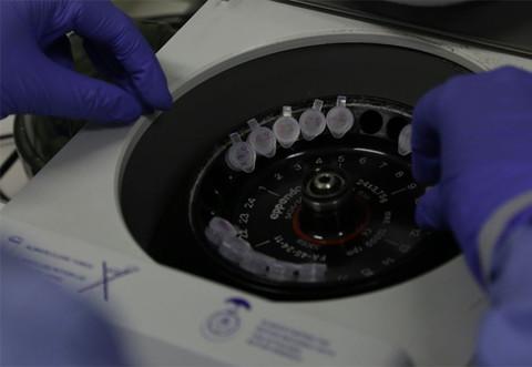 Casos suspeitos de Coronavírus aumentam para 84 em 11 municípios de Rondônia; 51 são em Porto Velho