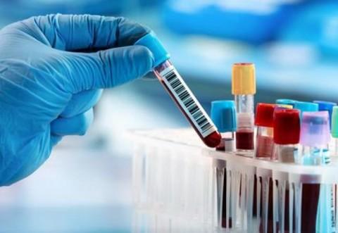 Rondônia: 163 casos suspeitos de Coronavírus; 89 na Capital
