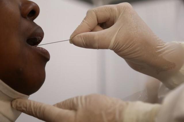 Rondônia: 3.862 casos de Coronavírus; 369 em 24 horas