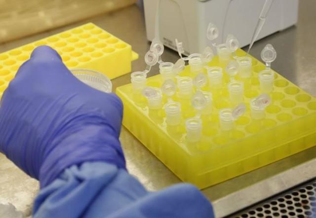 Rondônia chega a 4.743 casos de Coronavírus com 151 mortes; curados somam 2.143