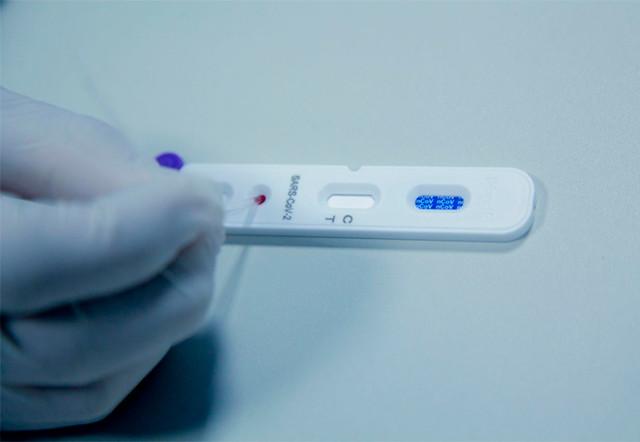 Coronavírus: Rondônia começa testes em massa da população em todos os municípios