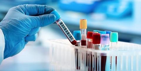 Rondônia: 38.407 casos confirmados de Coronavírus e 29.286 pacientes curados