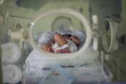 Rondônia tem a segunda maior mortalidade infantil do Brasil