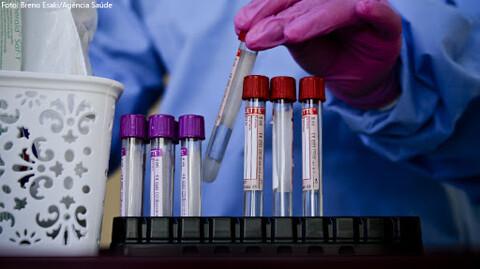 Rondônia registra 586 novos casos de Coronavírus e 10 mortes