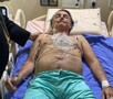 Planalto diz que Bolsonaro tem obstrução intestinal e será transferido para São Paulo